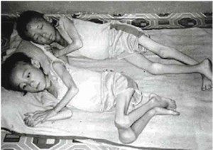 starving children 300x211 Kim Jong il dead at 69