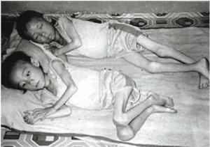starving children 300x211 Kim Jong il dead at 69